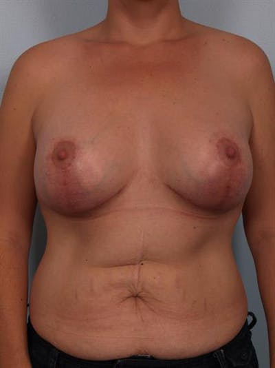 Complex Breast Revision Gallery - Patient 1310590 - Image 2