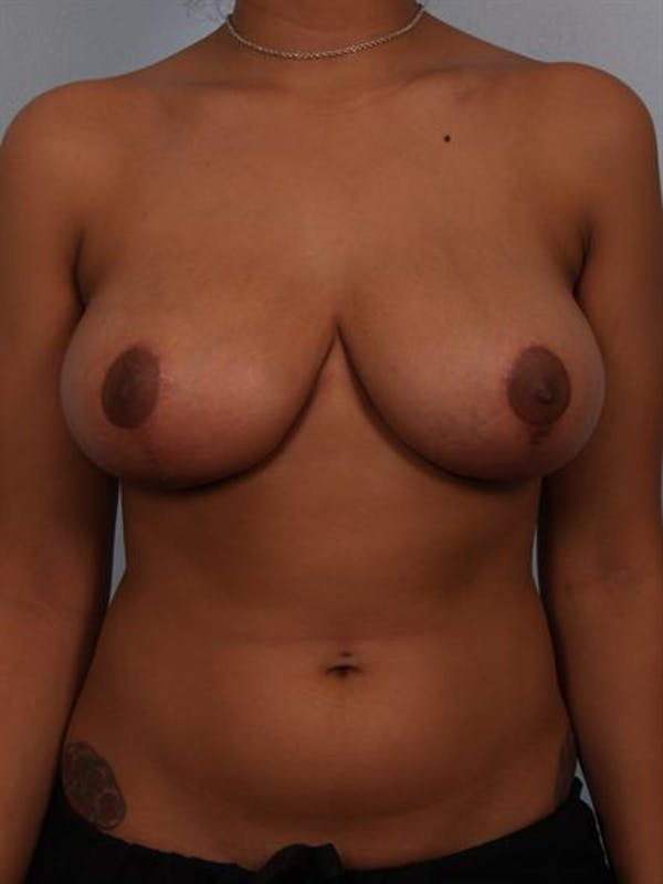 Breast Reduction Gallery - Patient 1310589 - Image 2