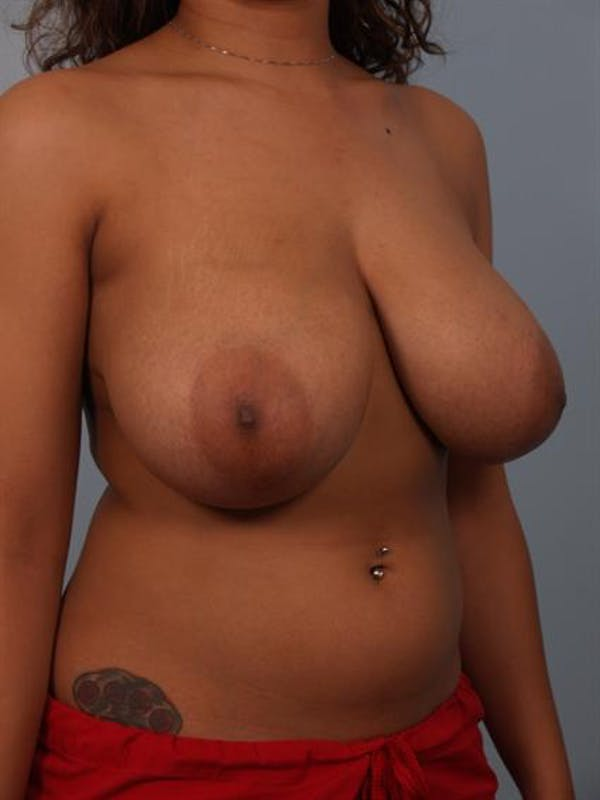Breast Reduction Gallery - Patient 1310589 - Image 3