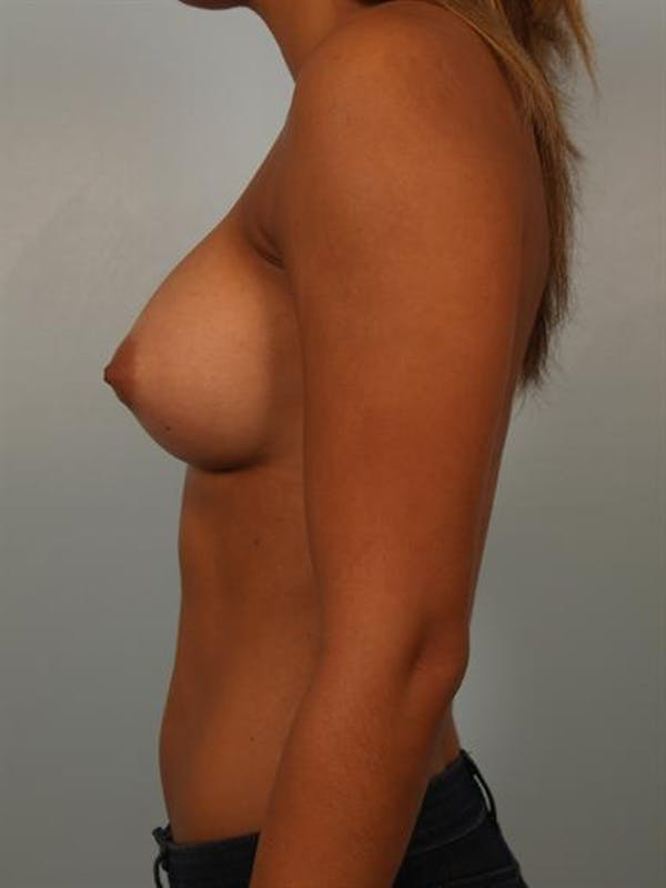 Breast Augmentation Gallery - Patient 1310588 - Image 6
