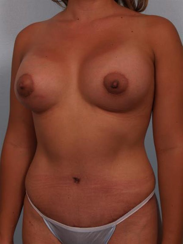 Breast Lift Gallery - Patient 1310591 - Image 4