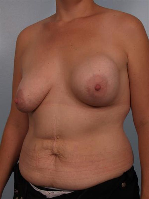 Complex Breast Revision Gallery - Patient 1310590 - Image 3