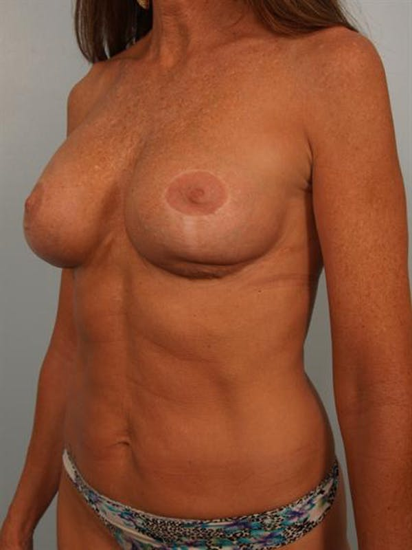 Fat Grafting Gallery - Patient 1310592 - Image 3