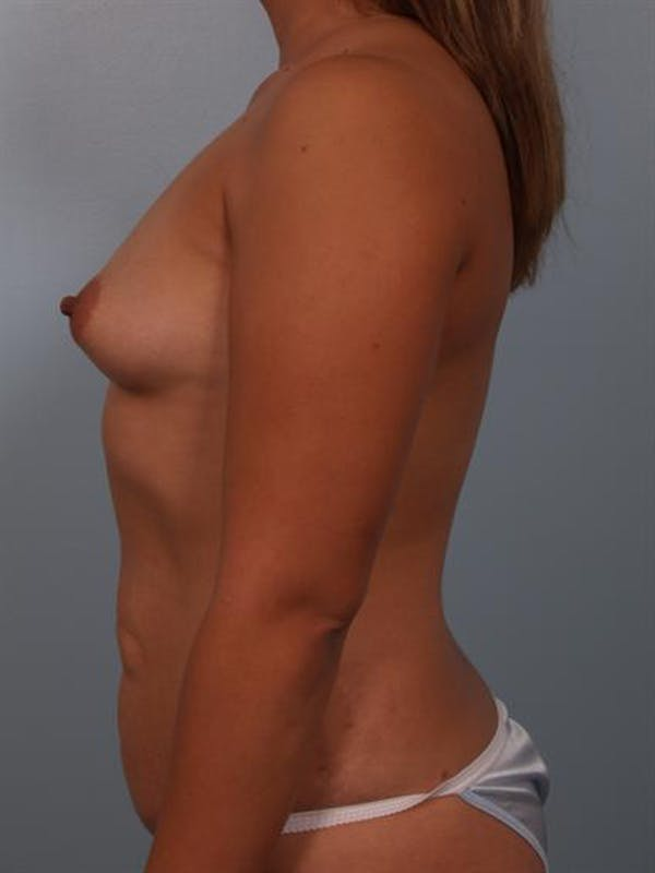 Breast Lift Gallery - Patient 1310591 - Image 5
