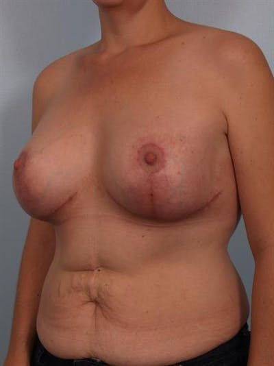 Complex Breast Revision Gallery - Patient 1310590 - Image 4