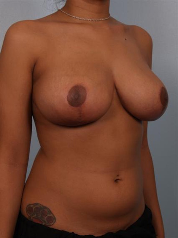 Breast Reduction Gallery - Patient 1310589 - Image 4