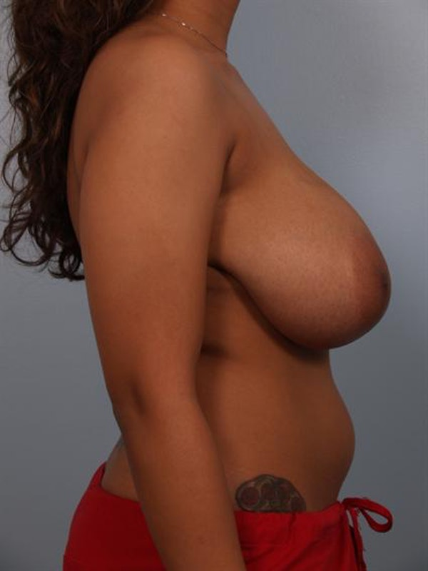 Breast Reduction Gallery - Patient 1310589 - Image 5