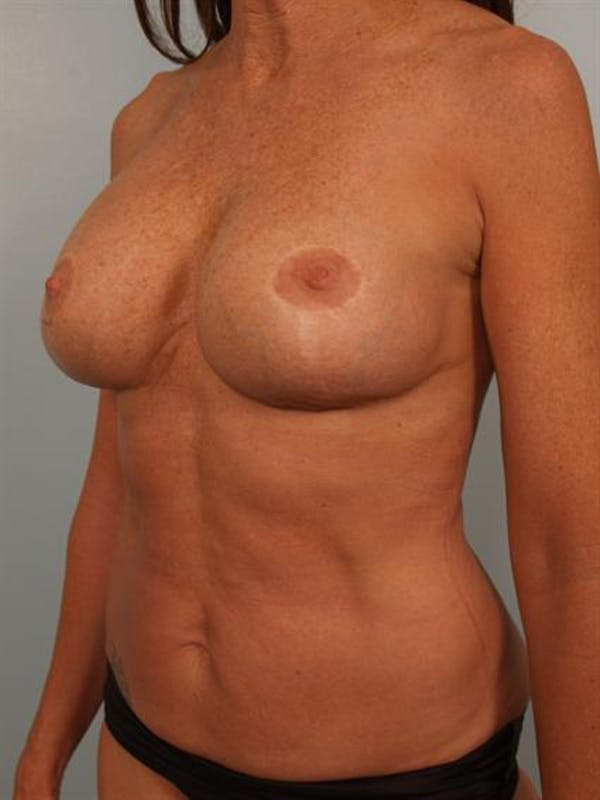 Fat Grafting Gallery - Patient 1310592 - Image 4