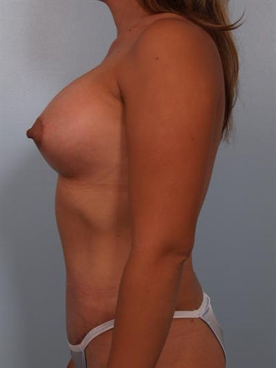 Breast Lift Gallery - Patient 1310591 - Image 6