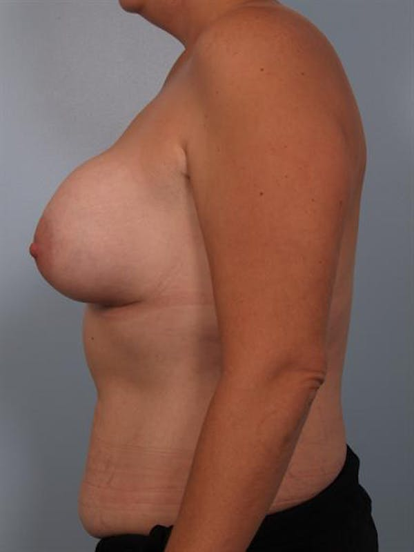 Complex Breast Revision Gallery - Patient 1310590 - Image 5