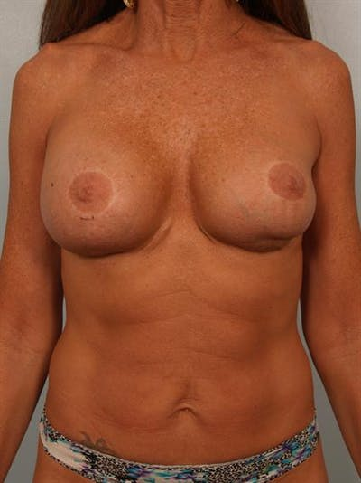 Fat Grafting Gallery - Patient 1310592 - Image 1