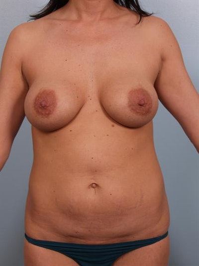 Mommy Makeover Gallery - Patient 1310593 - Image 1