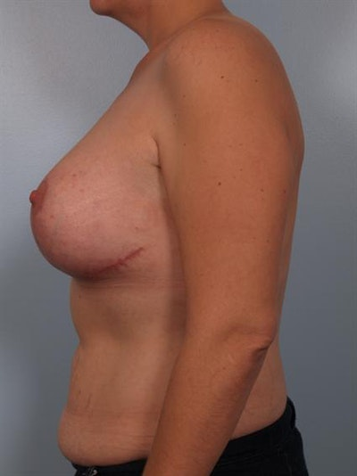 Complex Breast Revision Gallery - Patient 1310590 - Image 6