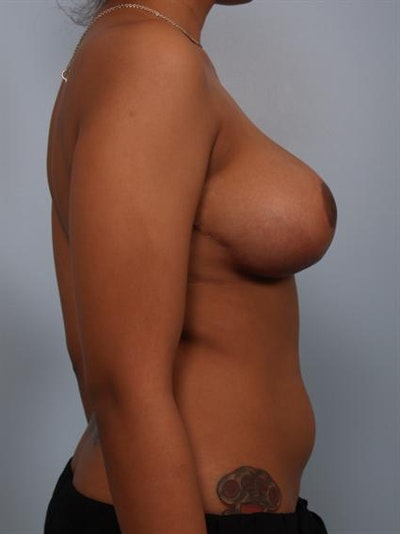 Breast Reduction Gallery - Patient 1310589 - Image 6