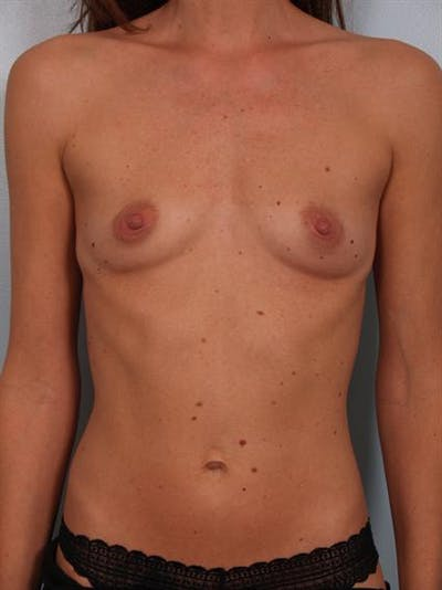 Breast Augmentation Gallery - Patient 1310597 - Image 1