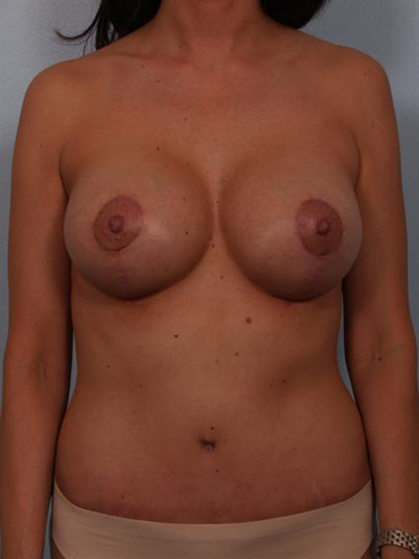 Mommy Makeover Gallery - Patient 1310593 - Image 2
