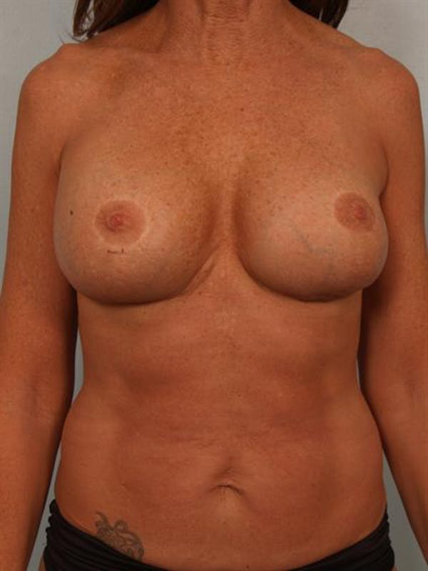 Fat Grafting Gallery - Patient 1310592 - Image 2