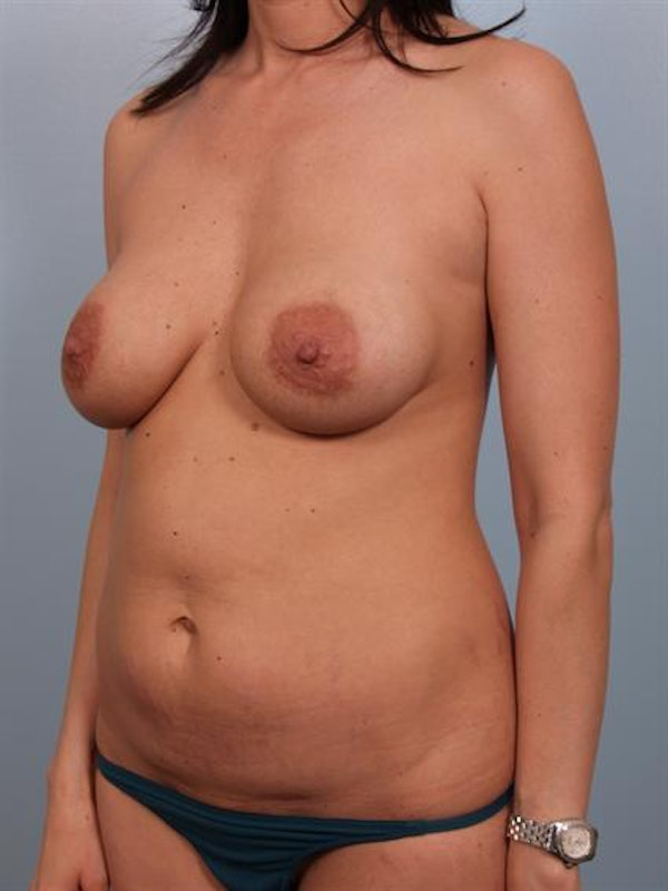 Mommy Makeover Gallery - Patient 1310593 - Image 3