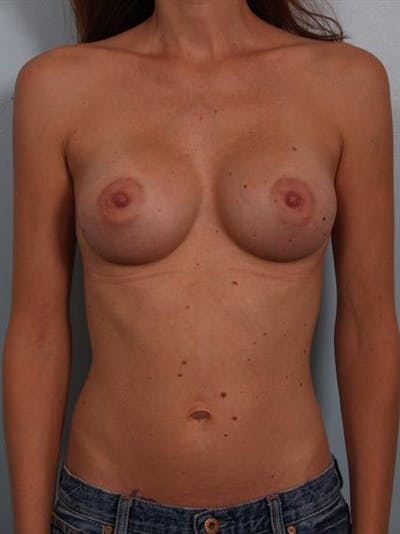 Breast Augmentation Gallery - Patient 1310597 - Image 2
