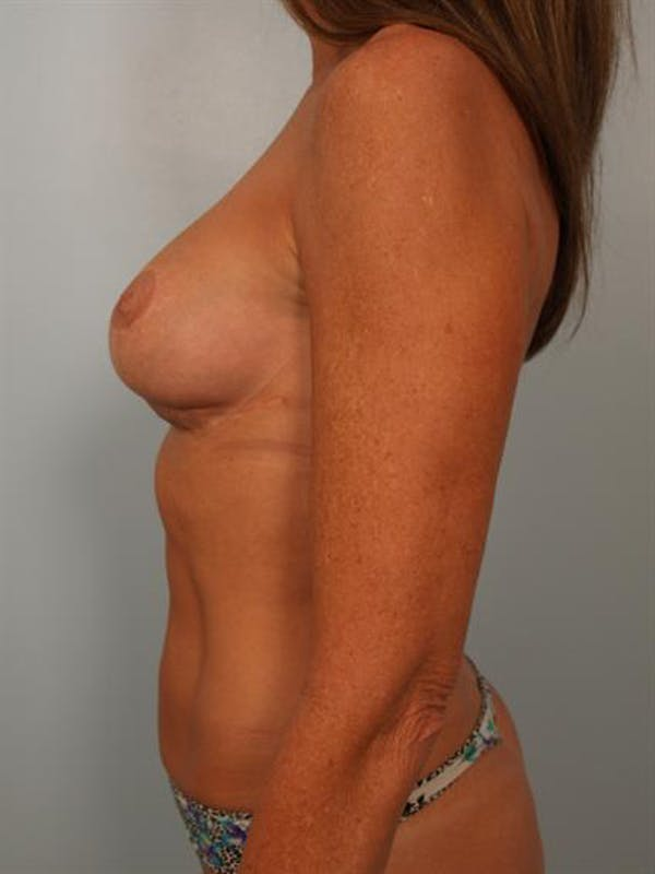 Fat Grafting Gallery - Patient 1310592 - Image 5
