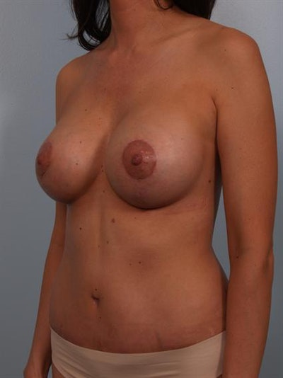 Mommy Makeover Gallery - Patient 1310593 - Image 4