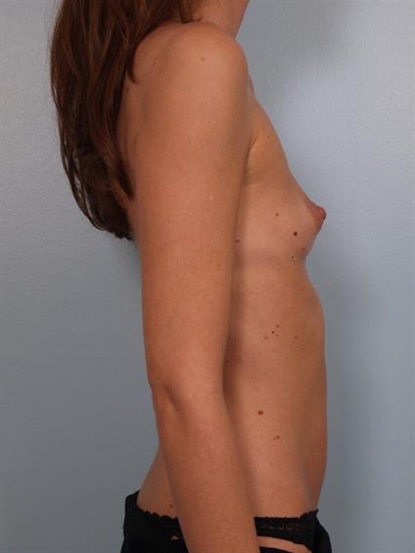 Breast Augmentation Gallery - Patient 1310597 - Image 3