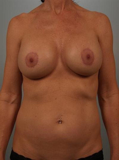 Complex Breast Revision Gallery - Patient 1310594 - Image 2