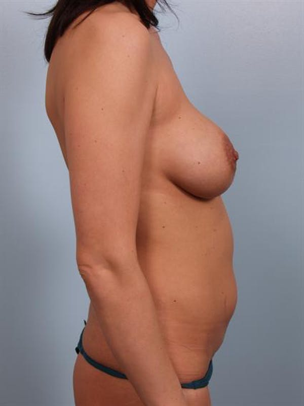 Mommy Makeover Gallery - Patient 1310593 - Image 5