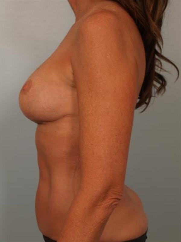 Fat Grafting Gallery - Patient 1310592 - Image 6