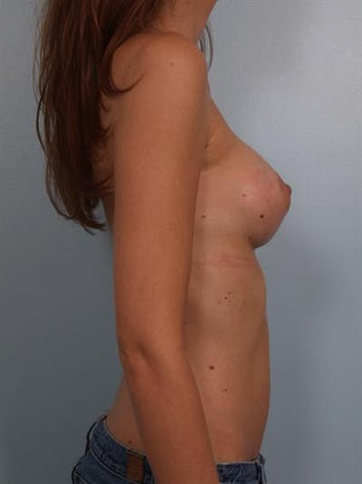 Breast Augmentation Gallery - Patient 1310597 - Image 4
