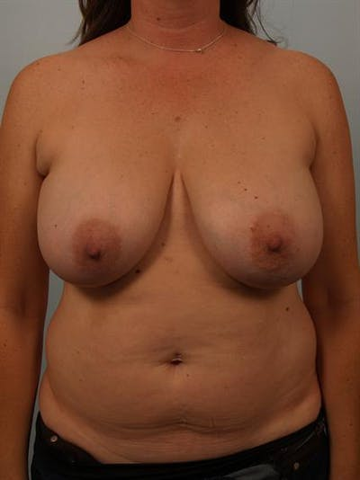 Breast Reduction Gallery - Patient 1310595 - Image 1