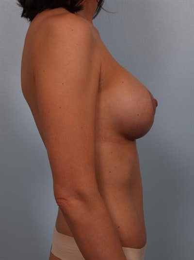 Mommy Makeover Gallery - Patient 1310593 - Image 6