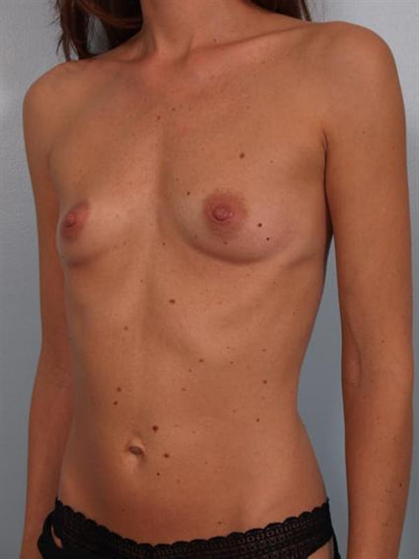 Breast Augmentation Gallery - Patient 1310597 - Image 5
