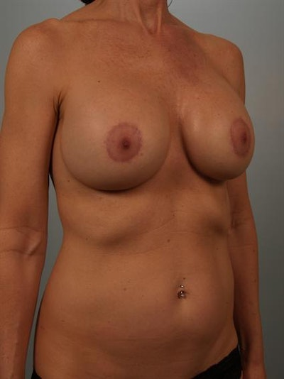 Complex Breast Revision Gallery - Patient 1310594 - Image 4