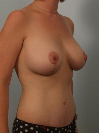 Breast Lift Gallery - Patient 1310596 - Image 4