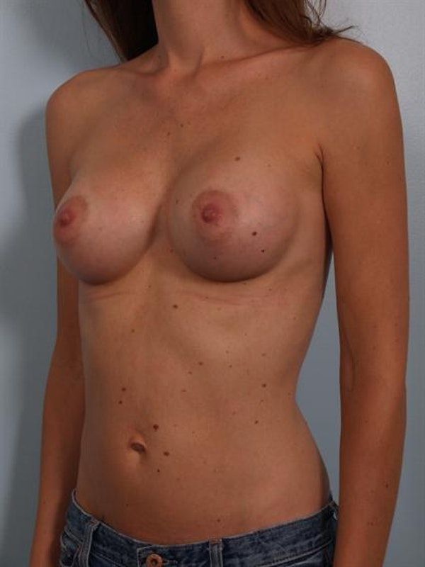 Breast Augmentation Gallery - Patient 1310597 - Image 6