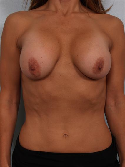 Image4 - Before and after image of Breast Revision by Dr. Cohen.