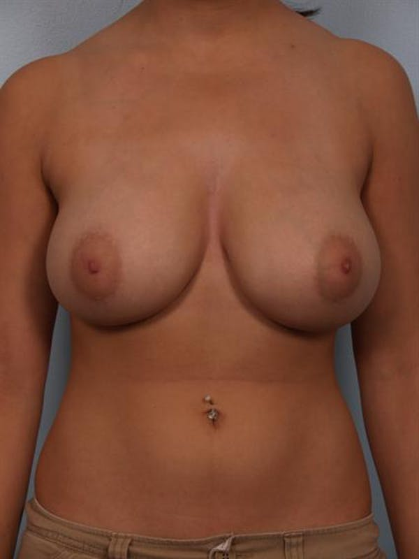 Breast Reduction Gallery - Patient 1310601 - Image 1