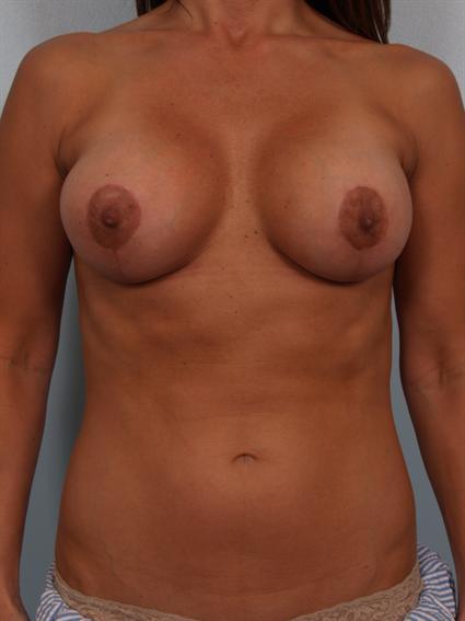 Image4 - Before and after image of Breast Rivison by Dr. Cohen.