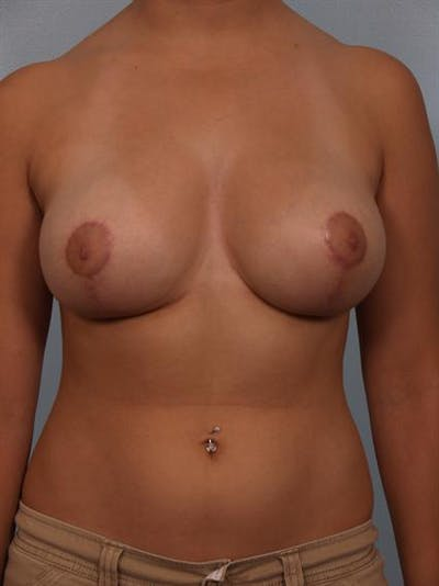 Breast Reduction Gallery - Patient 1310601 - Image 2