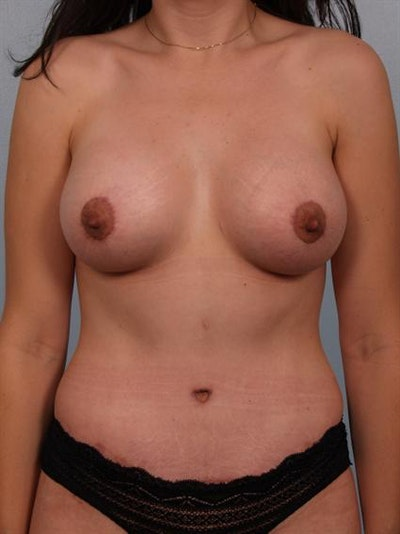Breast Lift Gallery - Patient 1310603 - Image 2