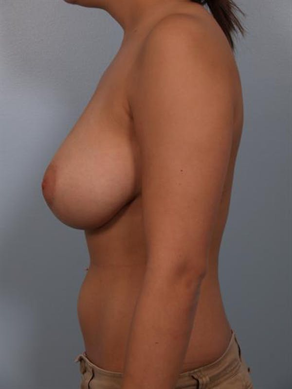 Breast Reduction Gallery - Patient 1310601 - Image 3