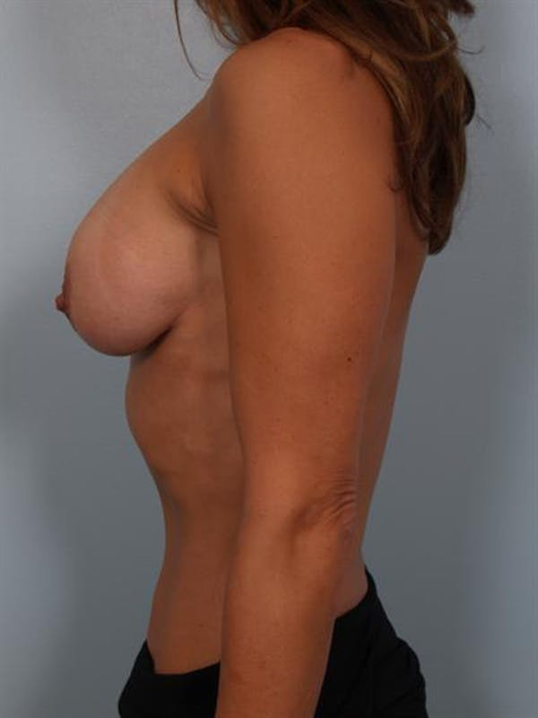 Complex Breast Revision Gallery - Patient 1310602 - Image 3