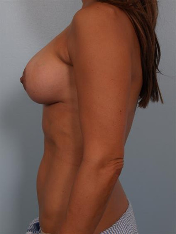 Complex Breast Revision Gallery - Patient 1310602 - Image 4