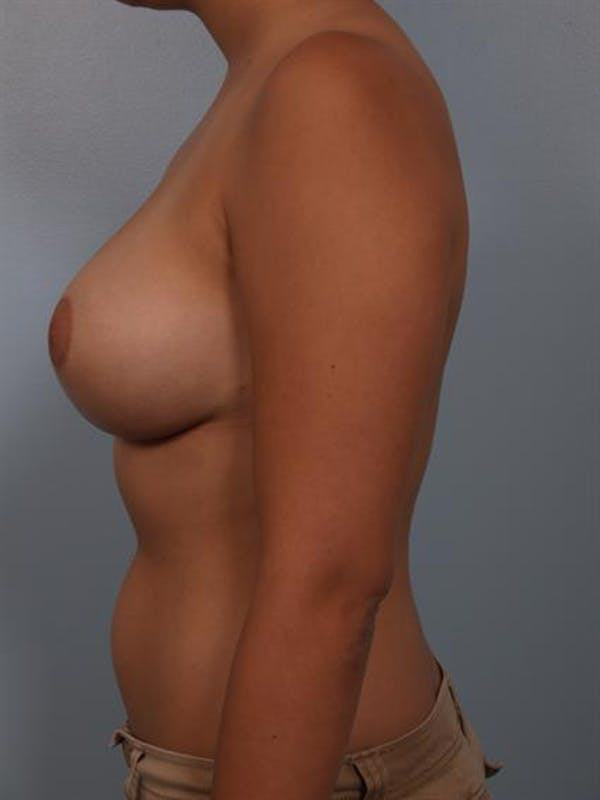 Breast Reduction Gallery - Patient 1310601 - Image 4