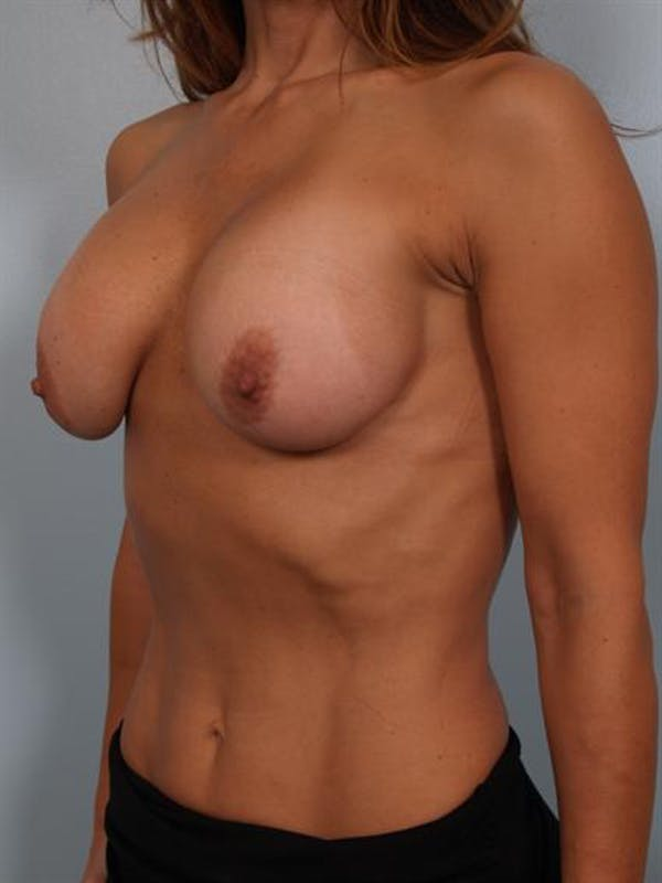 Complex Breast Revision Gallery - Patient 1310602 - Image 5