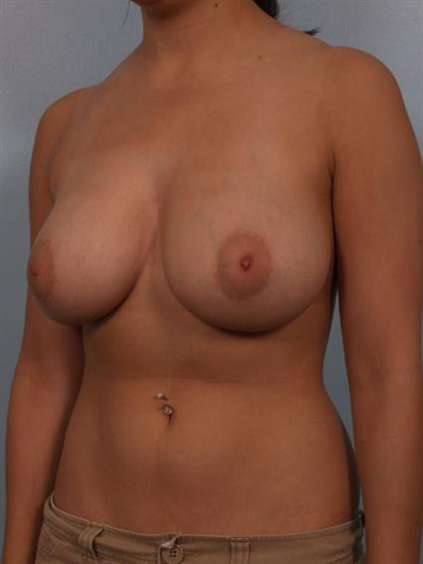 Breast Reduction Gallery - Patient 1310601 - Image 5