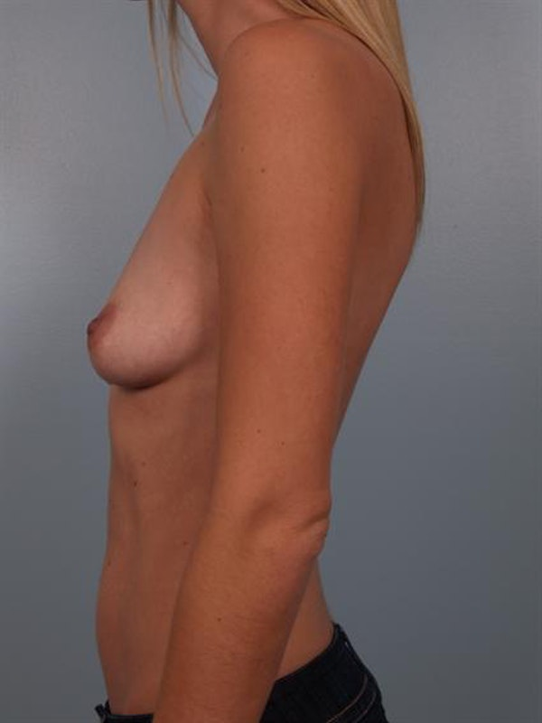 Breast Augmentation Gallery - Patient 1310606 - Image 3
