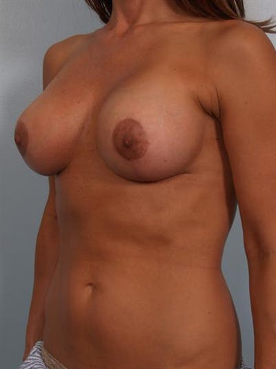 Complex Breast Revision Gallery - Patient 1310602 - Image 6