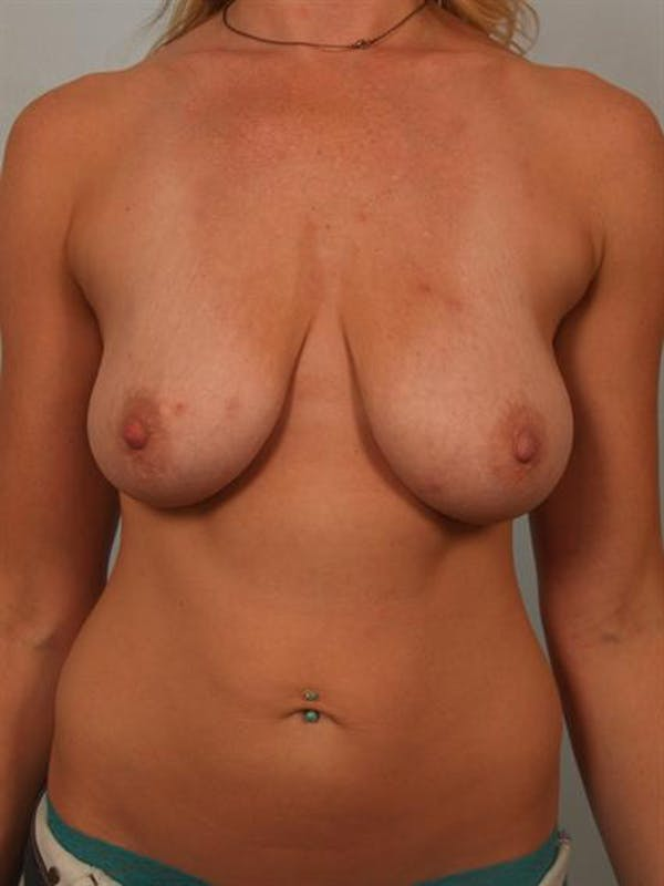 Fat Grafting Gallery - Patient 1310607 - Image 1